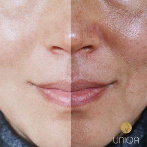 Macchie della pelle | Uniqa